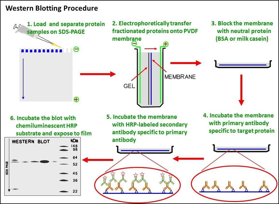 Western blotting technique: principle, procedure and