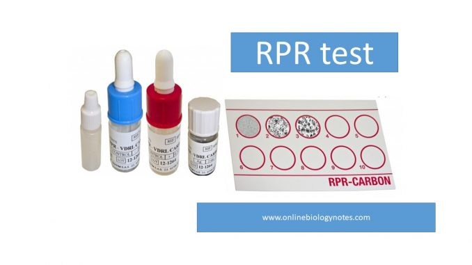 RPR test: Principle, Procedure, Result interpretation and ...