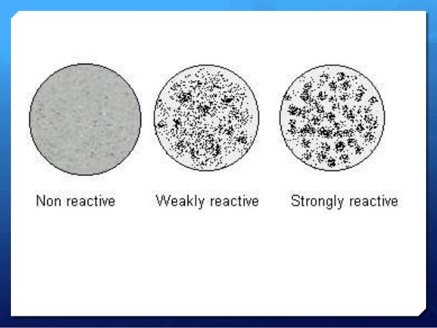 rpr test  principle  procedure  result interpretation and