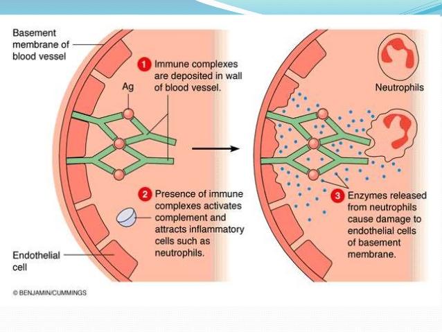 Type III hypersensitivity reaction: factors causing immune complex
