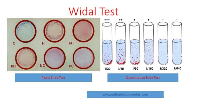 Widal test: Introduction, Principle, Procedure, Result
