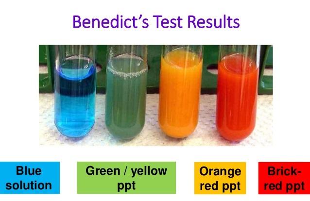 Benedict S Test Objective Principle Reagents Procedure