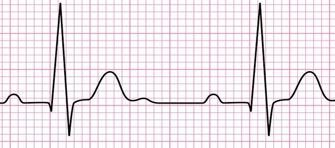 Electrocardiogram (ECG): working principle, normal ECG wave