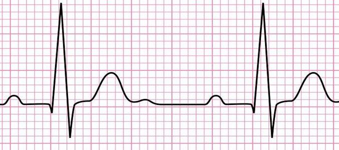 Electrocardiogram (ECG): working principle, normal ECG wave, application of ECG