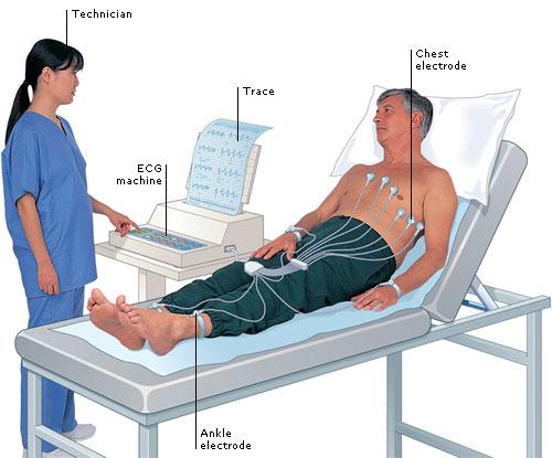Electrocardiogram (ECG): working principle, normal ECG wave