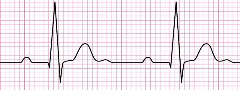 Electrocardiogram  Ecg   Working Principle  Normal Ecg