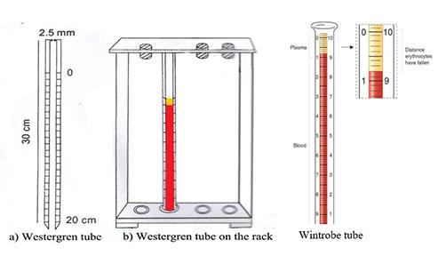 westergren method