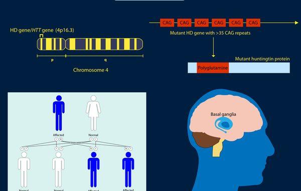 Huntington's disease-Causes, Symptoms, Diagnosis and ...